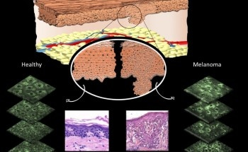 Non-Invasive Imaging Technique Could Accurately Detect Skin Cancer Without Surgical Biopsy