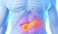 New Light-Scattering Tool Helps Doctors Identify Pancreatic Cancer at Early Stage